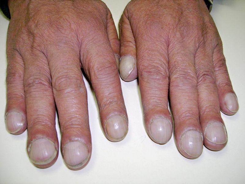 بالصور امراض الاظافر , اعراض امراض الاظافر 3876 1