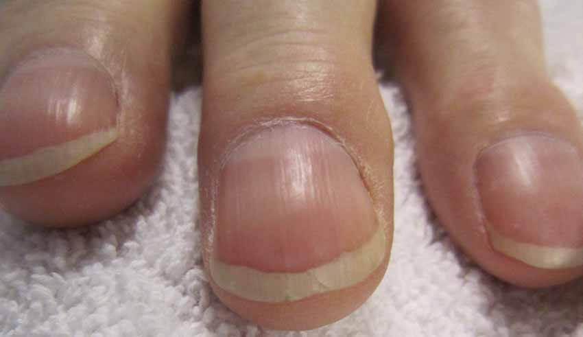 بالصور امراض الاظافر , اعراض امراض الاظافر 3876