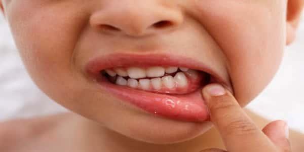 صورة اعراض نقص الكالسيوم , ظهور اعراض نقص الكالسيوم