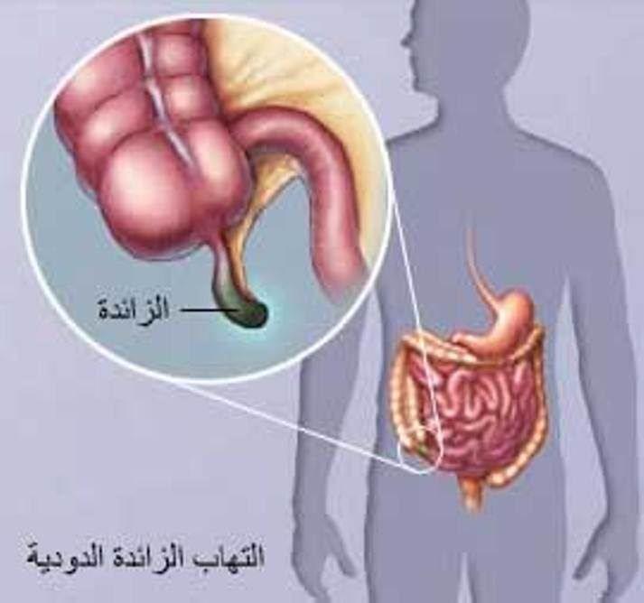صورة الزائدة الدودية , اعراض الزائده الدوديه