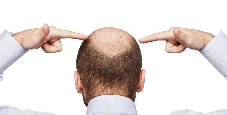 بالصور علاج تساقط الشعر للرجال , حل مشكله وقوع الشعر عند الرجال 4290 1