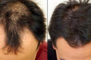 صور علاج تساقط الشعر للرجال , حل مشكله وقوع الشعر عند الرجال