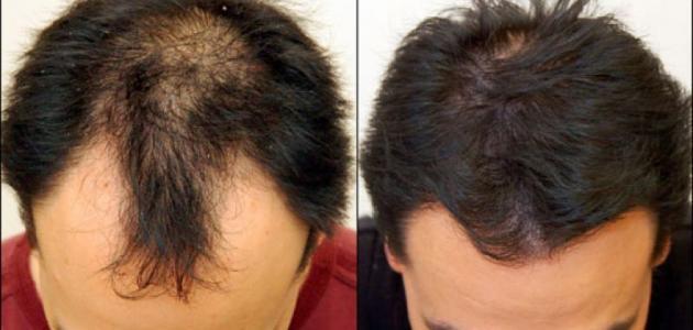 صورة علاج تساقط الشعر للرجال , حل مشكله وقوع الشعر عند الرجال