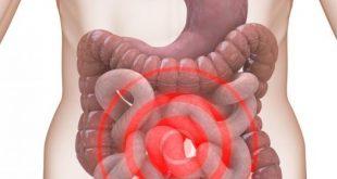 صوره اعراض القولون العصبي عند النساء , امراض القولون العصبى