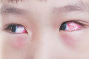 صورة علاج حساسية العين , طريقة علاج حساسية العين