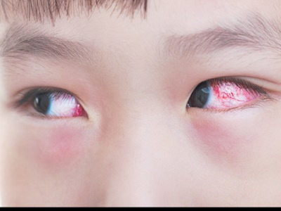 صورة علاج حساسية العين , طريقة علاج حساسية العين 5978