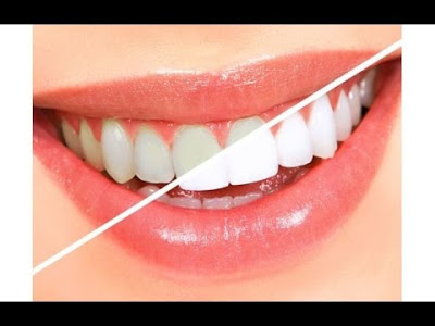 صور كيفية تبييض الاسنان , فيديو عن كيفية تبييض الاسنان