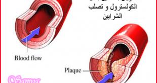 صورة علاج الكولسترول , طريقة رائعة للتخلص من الكولسترول 6525 1 310x165
