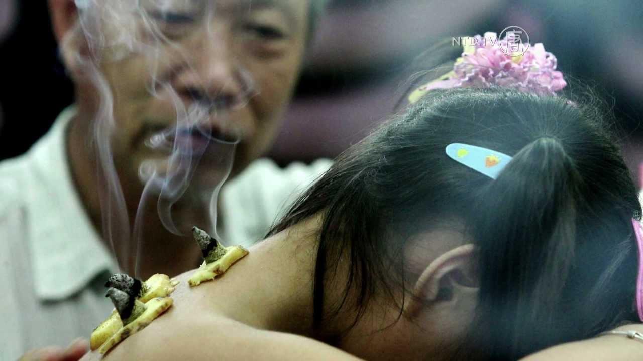 صوره الطب الصيني , اسرار الطب الصينى و فوائدة المتعددة