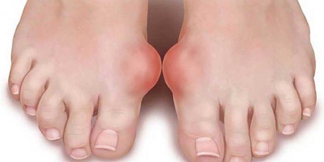 صور اعراض النقرس , الم شديد يصيب المفاصل