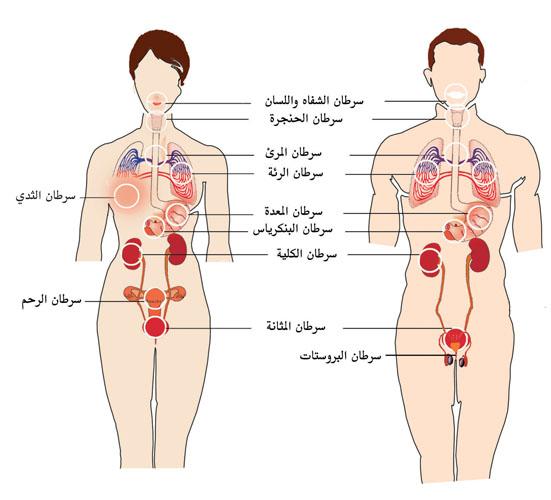 صور اضرار المعسل , مخاطر واضرار الشيشة