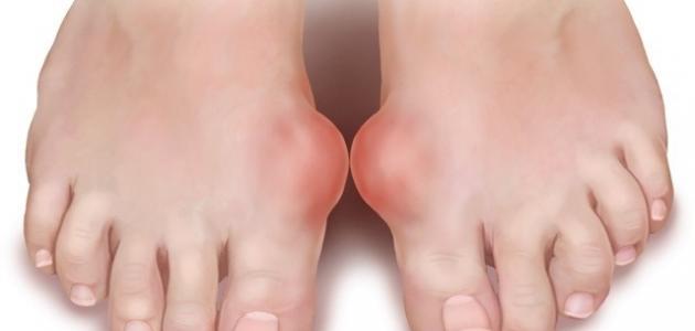 صورة مرض النقرس , معلومات عن مرض النقرس