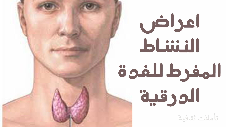 بالصور اعراض الغدة الدرقية , معلومات عن اغراض الغده الدرقيه 2597 2