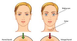 صورة اعراض الغدة الدرقية , معلومات عن اغراض الغده الدرقيه