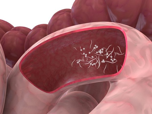 بالصور علاج الديدان , معلومات عن علاج الديدان 2602 2