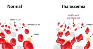 صوره مرض الثلاسيميا , معلومات عن مرض الثلاسيميا
