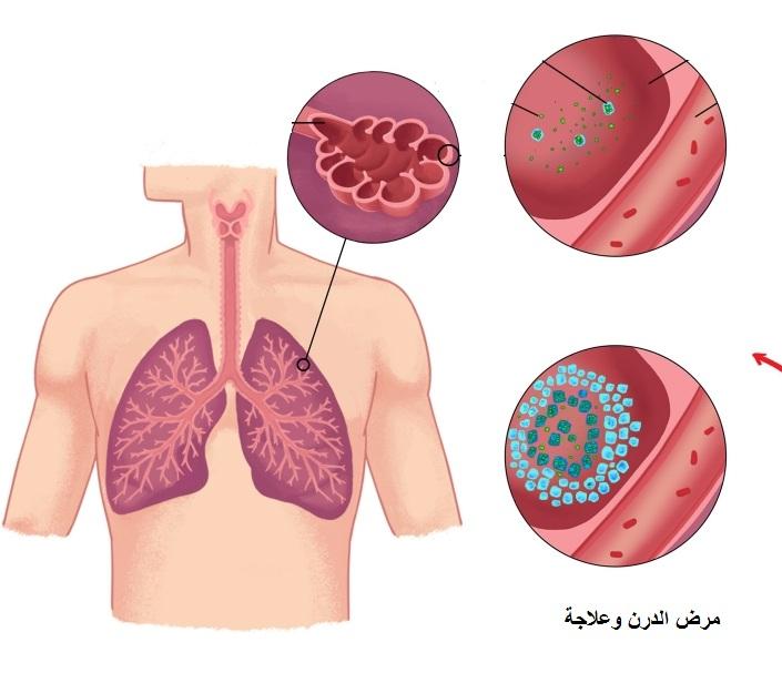صورة مرض الدرن , معلومات عن مرض الدرن