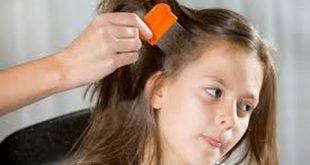 بالصور علاج الشعر الجاف , طرق طبية لعلاجات الشعر الجاف 2921 3 310x165