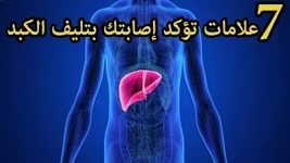 بالصور علاج تليف الكبد , العلاج الطبى الصحيح لتليف الكبد 3059 1