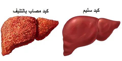 بالصور علاج تليف الكبد , العلاج الطبى الصحيح لتليف الكبد 3059 2