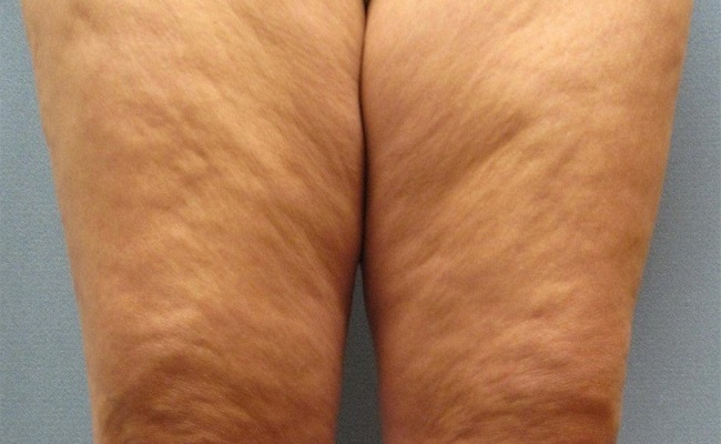 صورة ما هو السيلوليت , ما هى اعراض وعلاج السليلويت