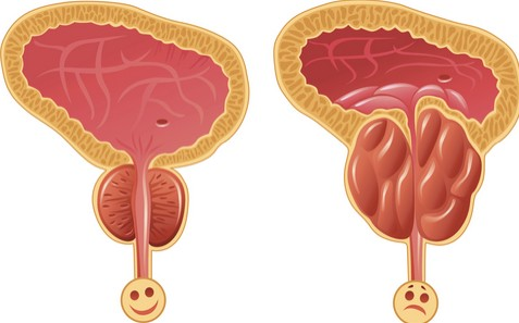 بالصور علاج البروستاتا , اسباب واعراض وتشخيص التهاب البروستاتا 4115