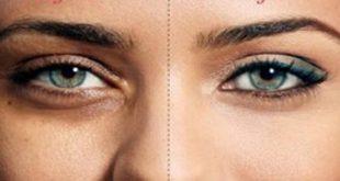 صور الهالات السوداء تحت العين , حلول رائعه للتخلص من الهالات السوداء