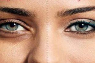 بالصور الهالات السوداء تحت العين , حلول رائعه للتخلص من الهالات السوداء 4143 3 310x205