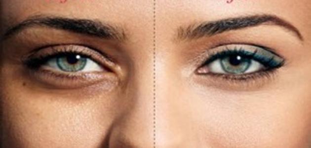 صورة الهالات السوداء تحت العين , حلول رائعه للتخلص من الهالات السوداء