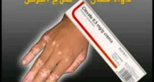 صوره علاج البرص , طريقة لعلاج مرض البرص