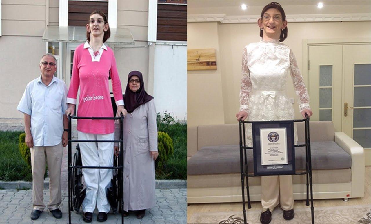 صور اطول امراة في العالم , شاهد اطول امراة فى العالم بالصور