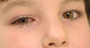 صوره علاج الرمد , اسباب مرض الرمد الفيروسي عند الاطفال