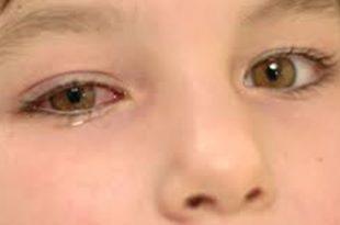 بالصور علاج الرمد , اسباب مرض الرمد الفيروسي عند الاطفال 943 3 310x205