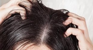 صوره تفسير حلم القمل , تفسيرات لقمل الشعر تقلق الجميع