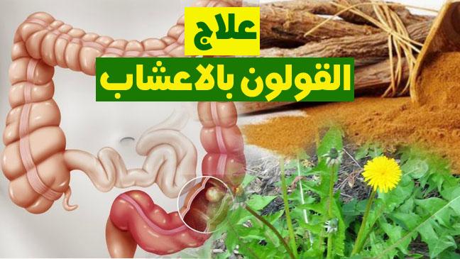 صورة اعراض التهاب القولون , التهاب القولون المزمن اعراضه وعلاجه