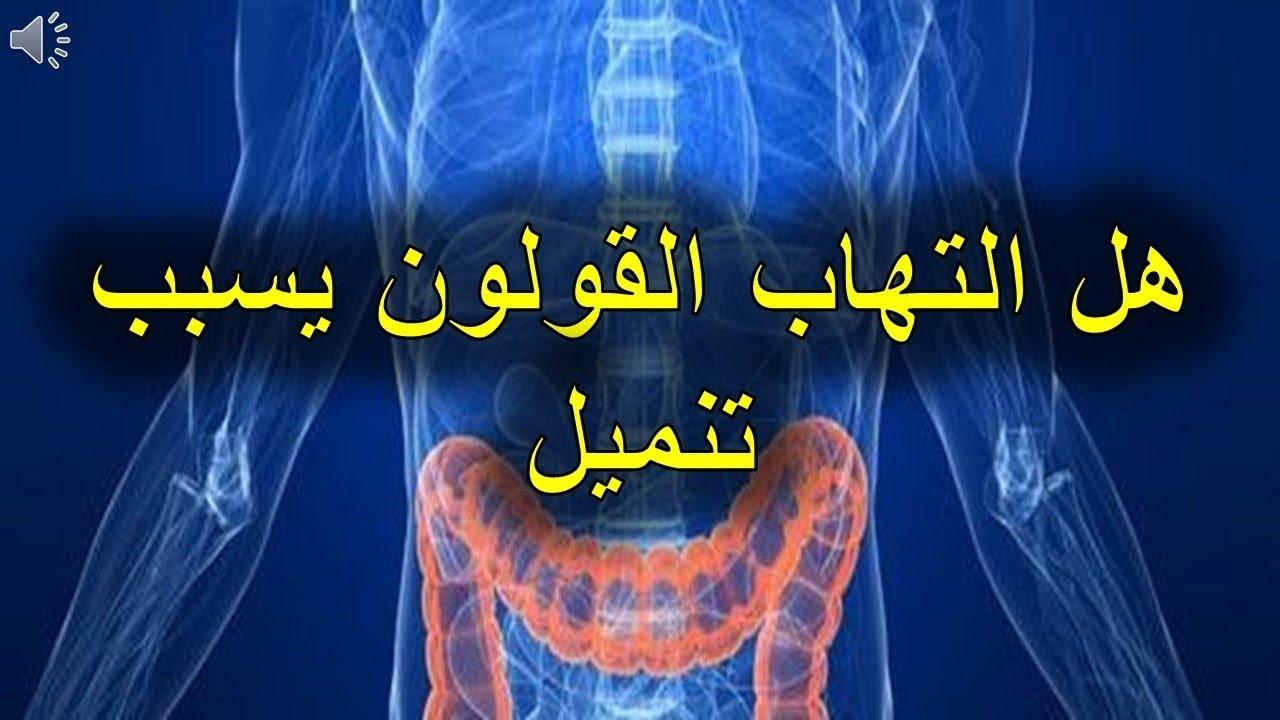 بالصور اعراض التهاب القولون , التهاب القولون المزمن اعراضه وعلاجه 1799 2