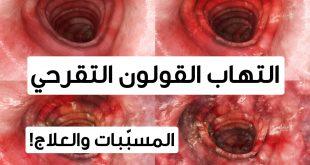 بالصور اعراض التهاب القولون , التهاب القولون المزمن اعراضه وعلاجه 1799 3 310x165