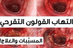 صور اعراض التهاب القولون , التهاب القولون المزمن اعراضه وعلاجه