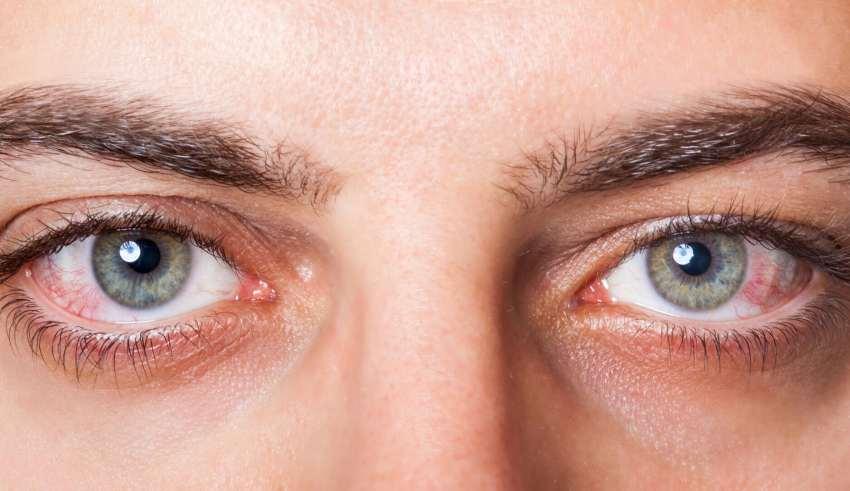صورة افضل مرطب للعين الجافه , معالجة جفاف العين