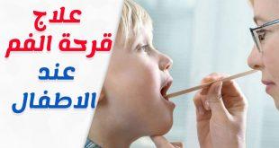 صور علاج قرح الفم عند الاطفال , اسباب قرح فم الطفل
