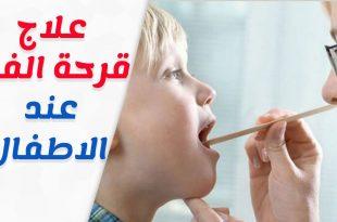 بالصور علاج قرح الفم عند الاطفال , اسباب قرح فم الطفل 12862 2 310x205