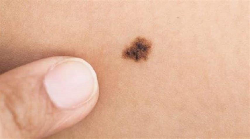 صور اعراض مرض السرطان , علامات تدل على الاصابة بالسرطان