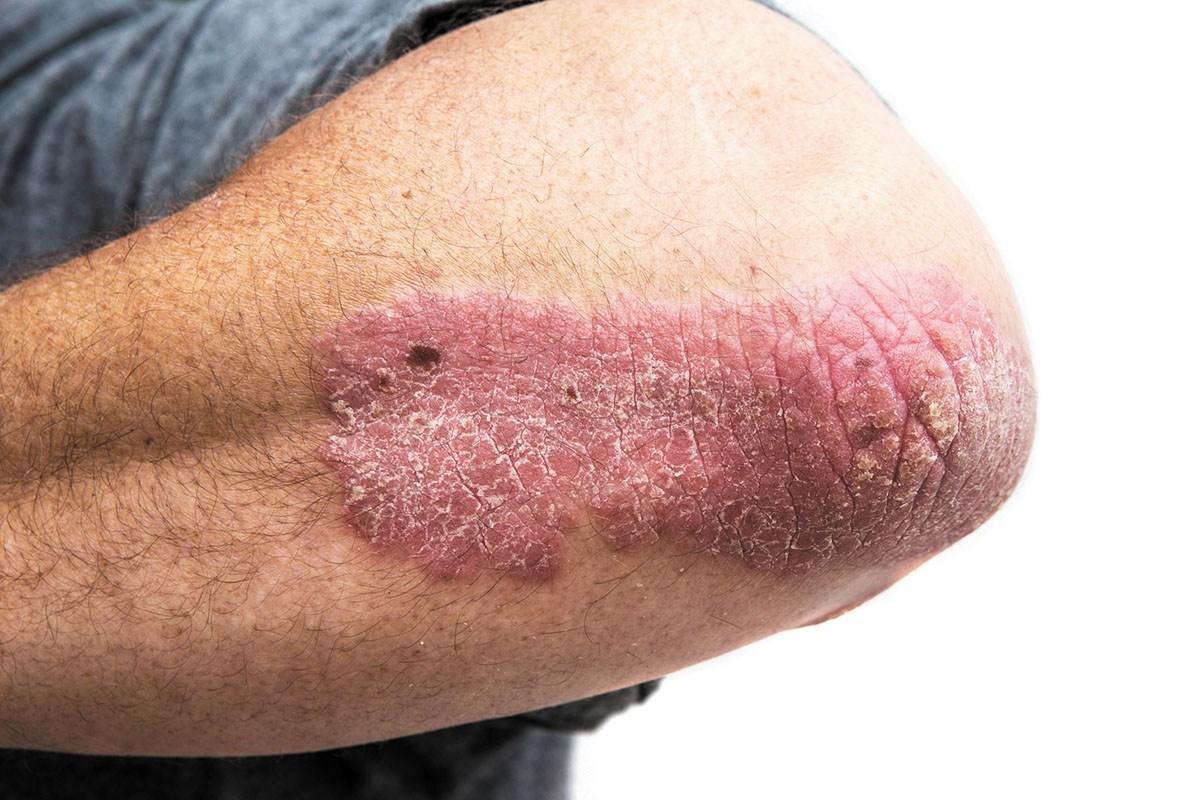 صورة مرض الصدفية , امراض جلديه تشبه الانسان بالسمك
