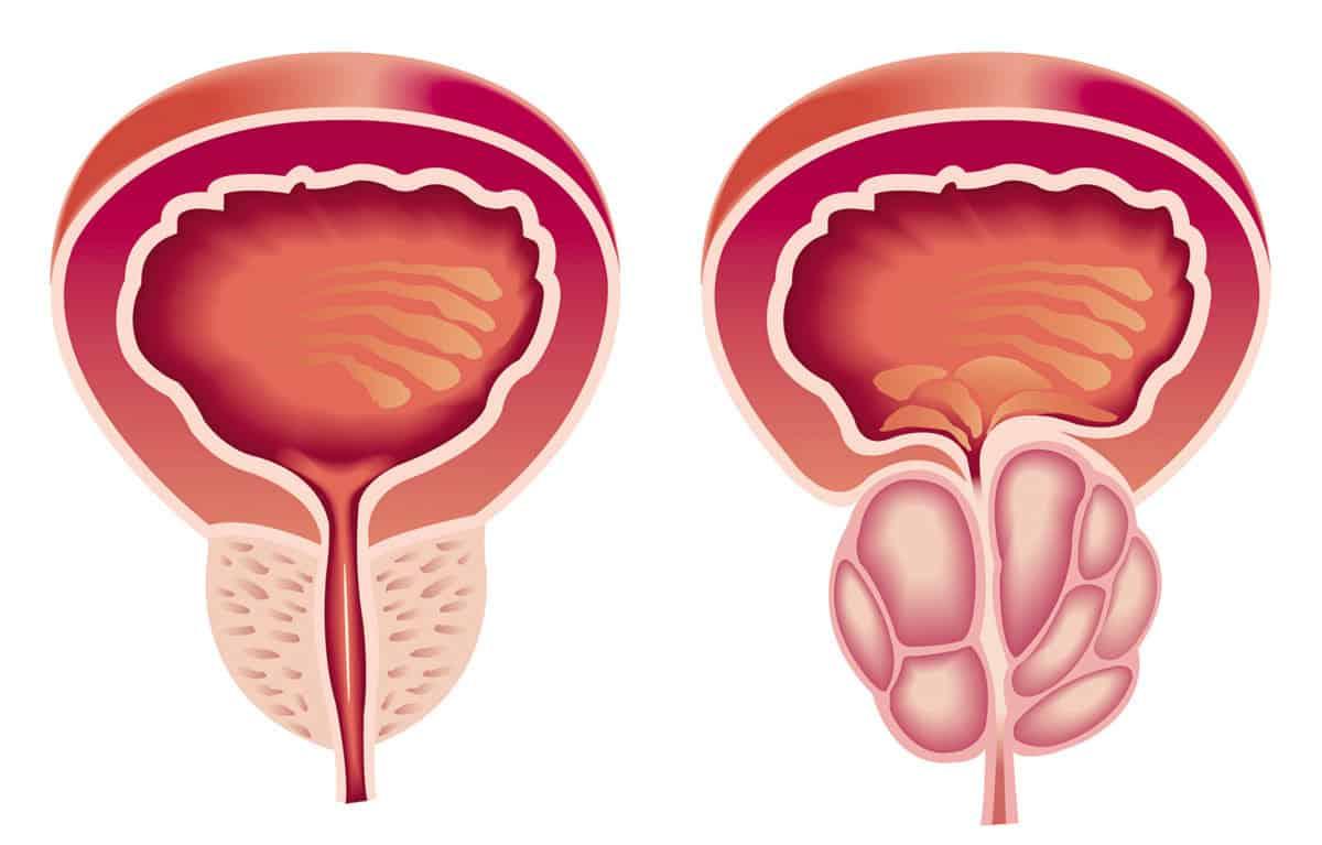 صورة اعراض البروستاتا , ما لم تعرفه عن مرض البروستاتا