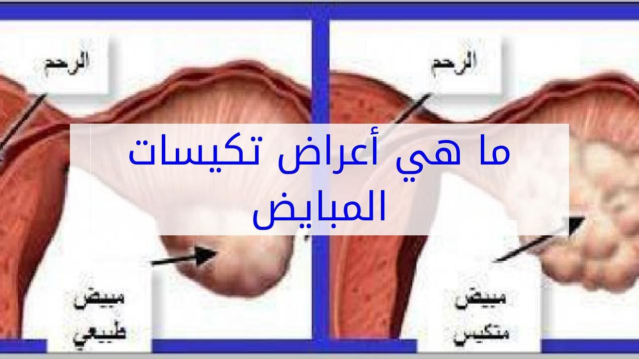 صور ماهي اعراض تكيس المبايض , علامات توضح لك تواجد تكيس فى المبايض