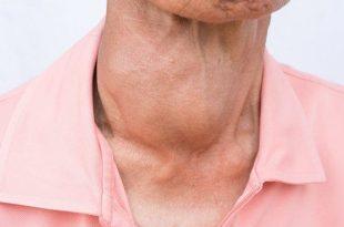 صورة مرض الغدة الدرقية , اعراض مرض الغدة